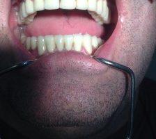 Estetică dentară