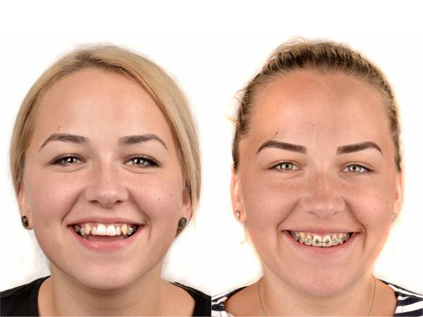 aparat dentar metalic autoligaturant - centrul ortodontic cluj