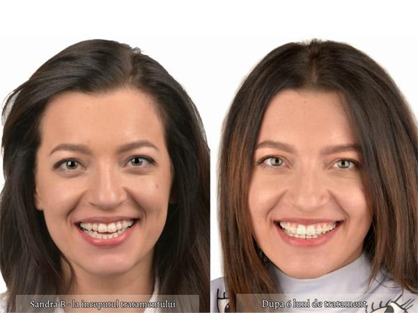 aparat dentar fizionomic - centrul ortodontic cluj