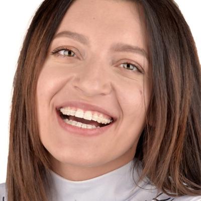 tratamente adulti - centrul ortodontic cluj